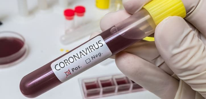 Potential Impacts of the Coronavirus for the Insurance Industry